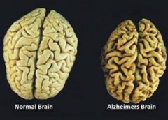 Preventing Brain Loss with B Vitamins
